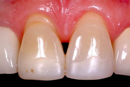 Atlanta dentist bioclear
