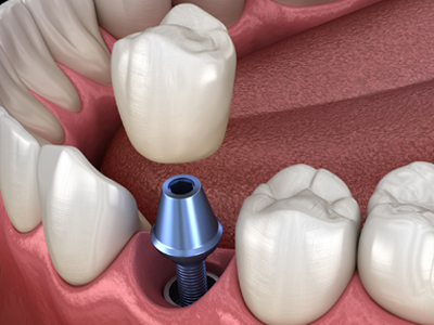 Atlanta Dentist Dental Implants