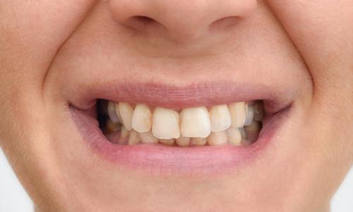 Atlanta Dentist