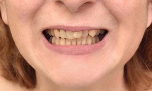 Atlanta Dentist Same Day Crowns