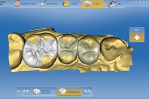 Cerec - Same Day Crowns Atlanta Dentist